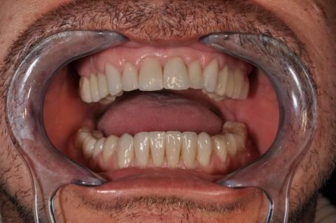 Tecnologia computerizzata per fare i denti in ceramica al computer, sistema CAD-CAM